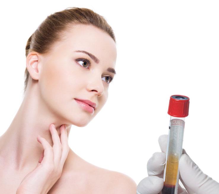 plasma-rico-en-plaquetas-rejuvenecimiento-facial-salon-vogue-spa