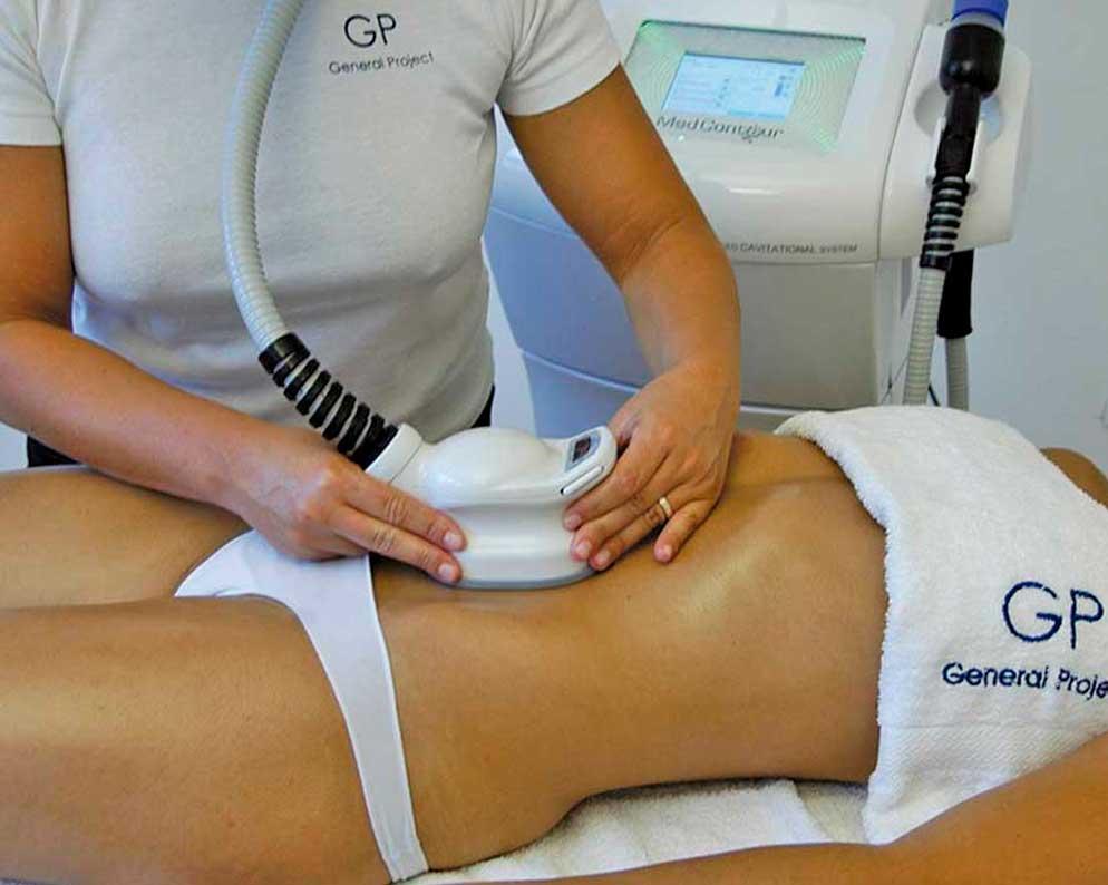 ultracavitacion-tratamiento-corporal